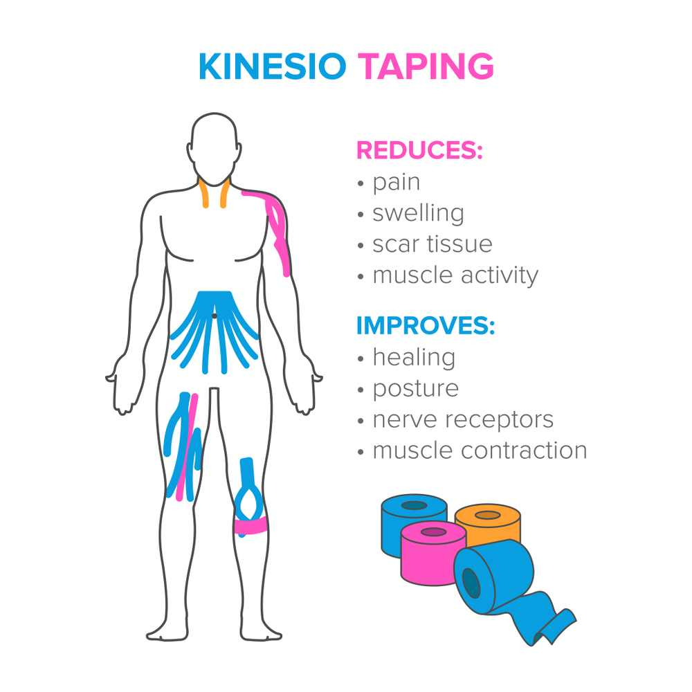 kinosiology taping benefits for heel pain