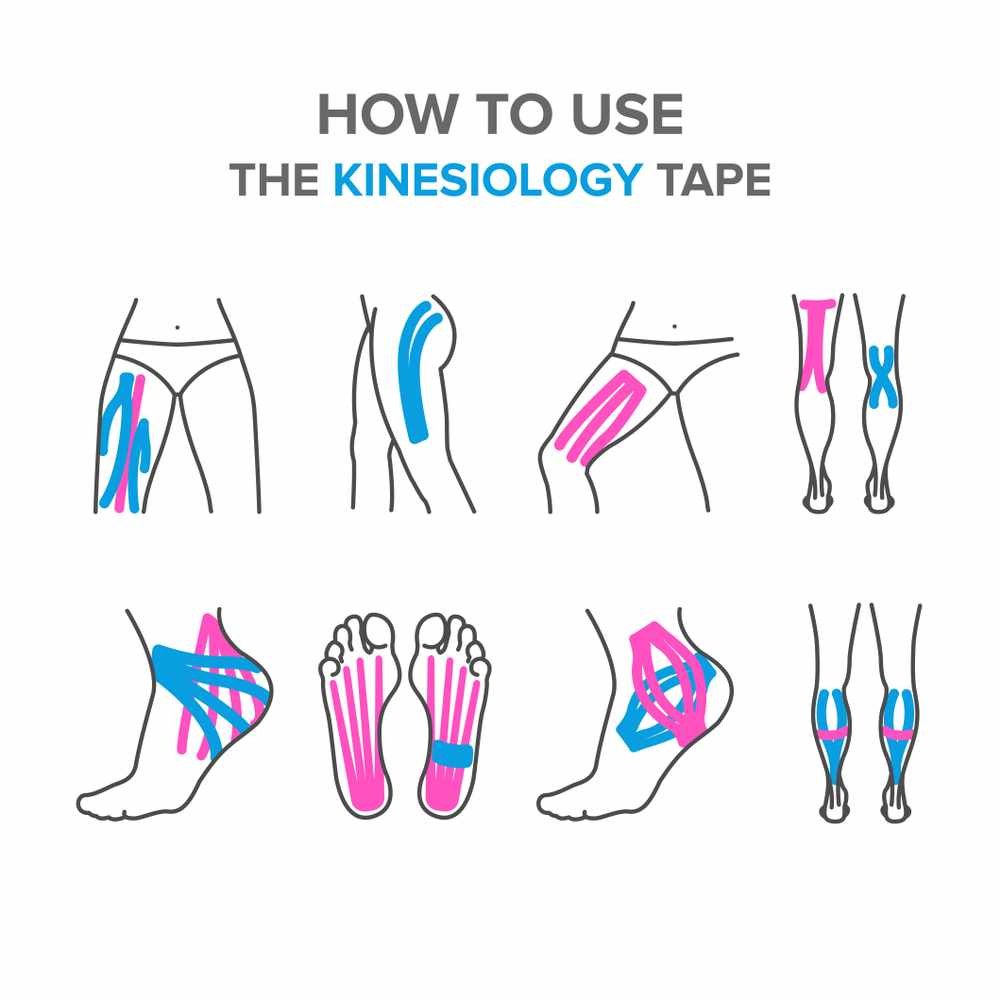 kt tape for plantar fasciitis